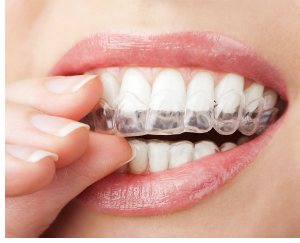 mouth with clear orthodontic brace tray