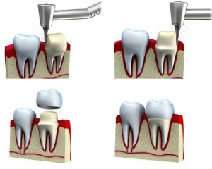 dental crown beside natural tooth