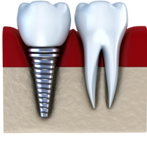 dental implant beside natural tooth