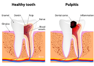 healthy tooth and tooth with pulpitis