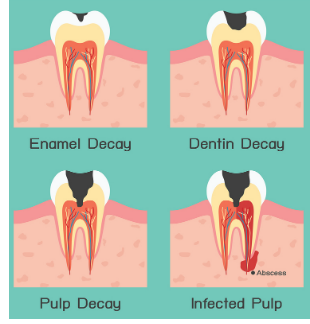Types of Tooth Decay