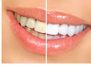 Teeth whitening system before and after